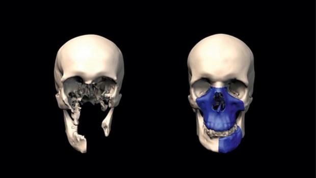 3d print skull