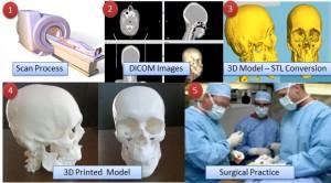 CT MRI Scan DICOM Images to 3D Printed Models