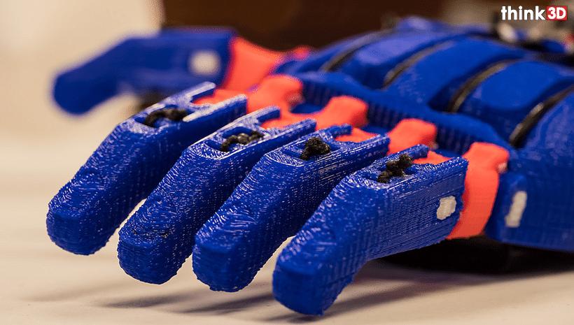 3D Printed Custom Prosthetics
